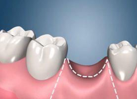 phim-3d-cay-ghep-implant-nha-khoa-vinh-an